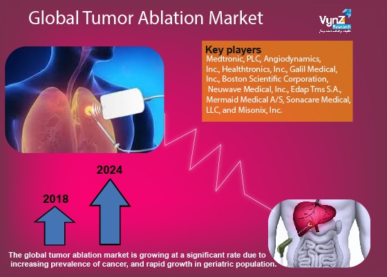 Tumor Ablation Market Highlights