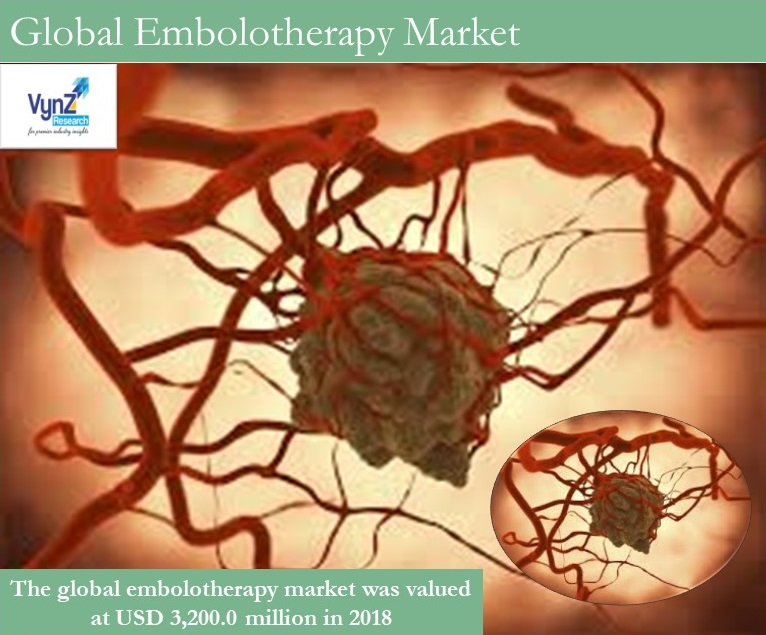 Embolotherapy Market Highlights