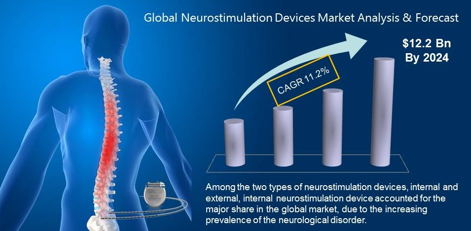 Neurostimulation Device Market Highlights